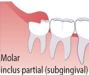 molar de minte partial inclus
