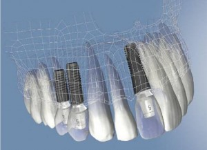 schema digitala implant dentar