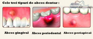 tipuri de abces dentar