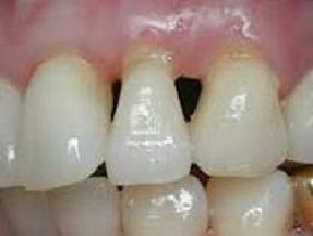 retractie gingivala