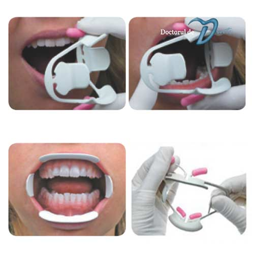 Aplicare departator retractor buze si obraji model Optiview